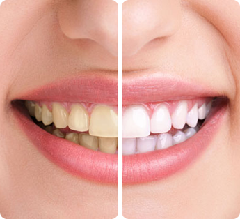 Before & After - Teeth Whitening Wheaton IL